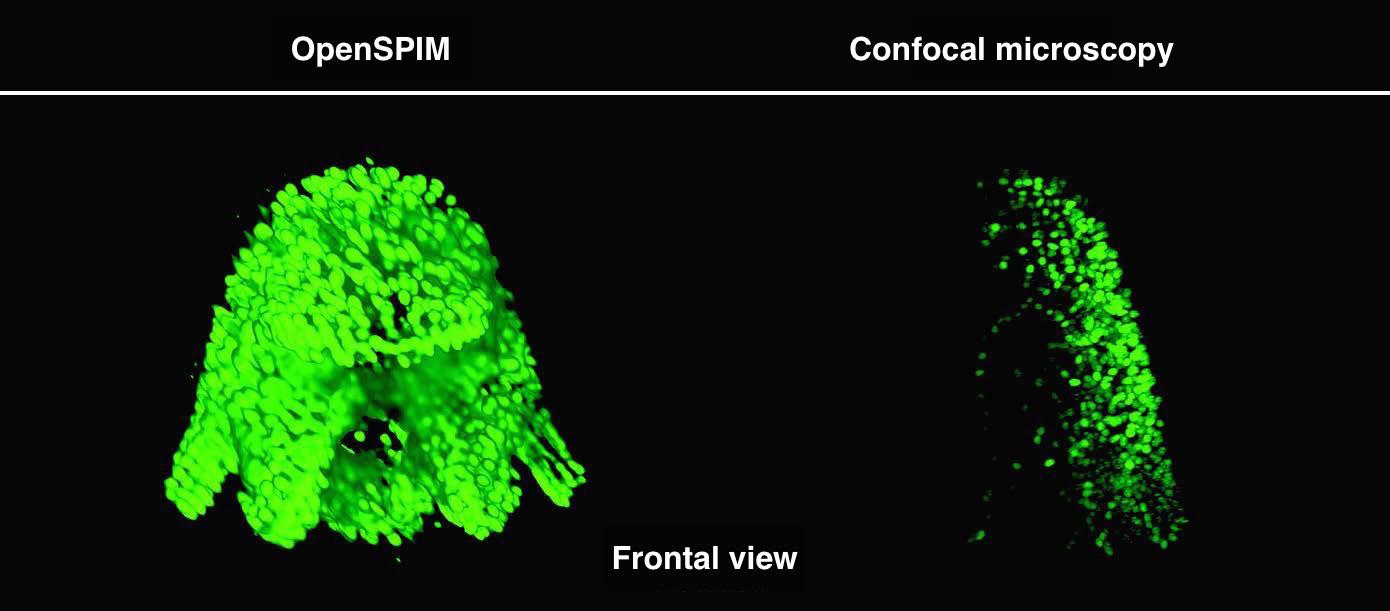 Polyclad flatworm Maritigrella: OpenSPIM vs Confocal microscopy